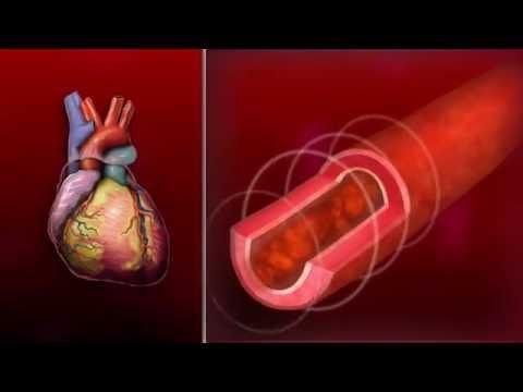 Primární plicní hypertenze stupně 3