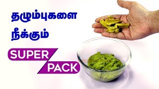 Removing Scars on Face | How to Remove Chicken Pox Scars? Beauty Tips in Tamil