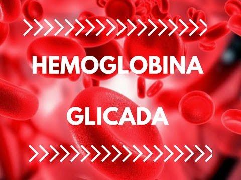 Diabetes, SIDA