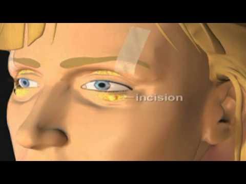 Le masque pour la personne des rides