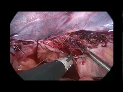 Rumi II - Total Laparoscopic Hysterectomy