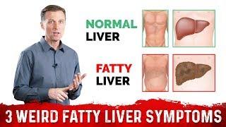 3 Weird Signs & Symptoms Of Fatty Liver – Dr.Berg