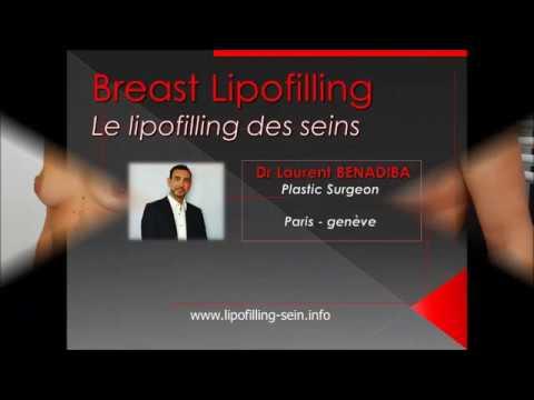 Le lipofilling mammaire en vidéo