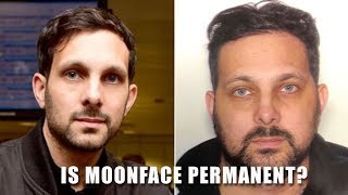 Is Moonface Permanent? Does it affect you for the rest of your life?