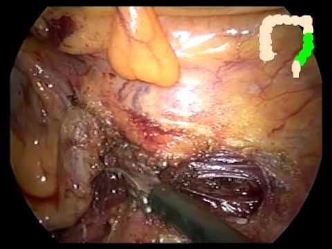 Laparoskopowa subtotalna kolektomia z zespoleniem kątniczo-odbytniczym w leczeniu zaparć o powolnym tranzycie