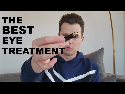 Léloignement laser des taches de pigment sur la personne à krasnodare