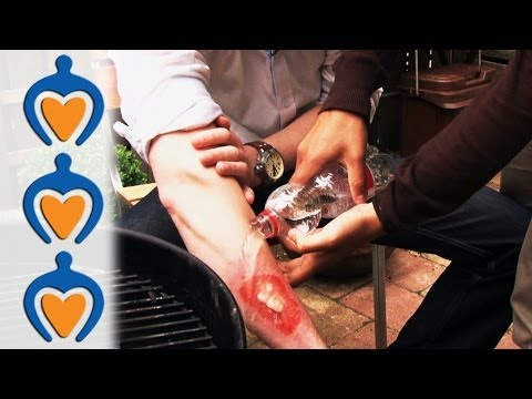 Video Minor Burn First Aid - Learn how to treat minor burns in less than 1 minute