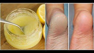 DIY SCRUB For Crack Free Feet|| Winter Care Scrub For Feet