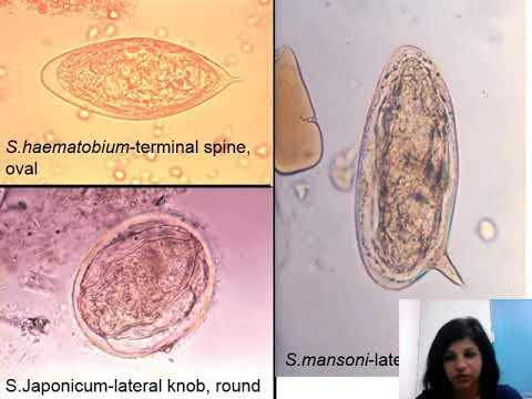 Paraziták a hörgők kezelésében
