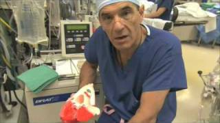 Heart Valve Replacement Surgery Explained Part 1