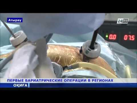 Операции по уменьшению желудка начали делать в Атырау