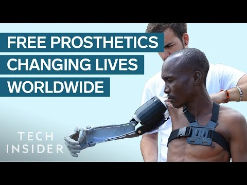 Helping Change Lives with Prosthetic Limbs