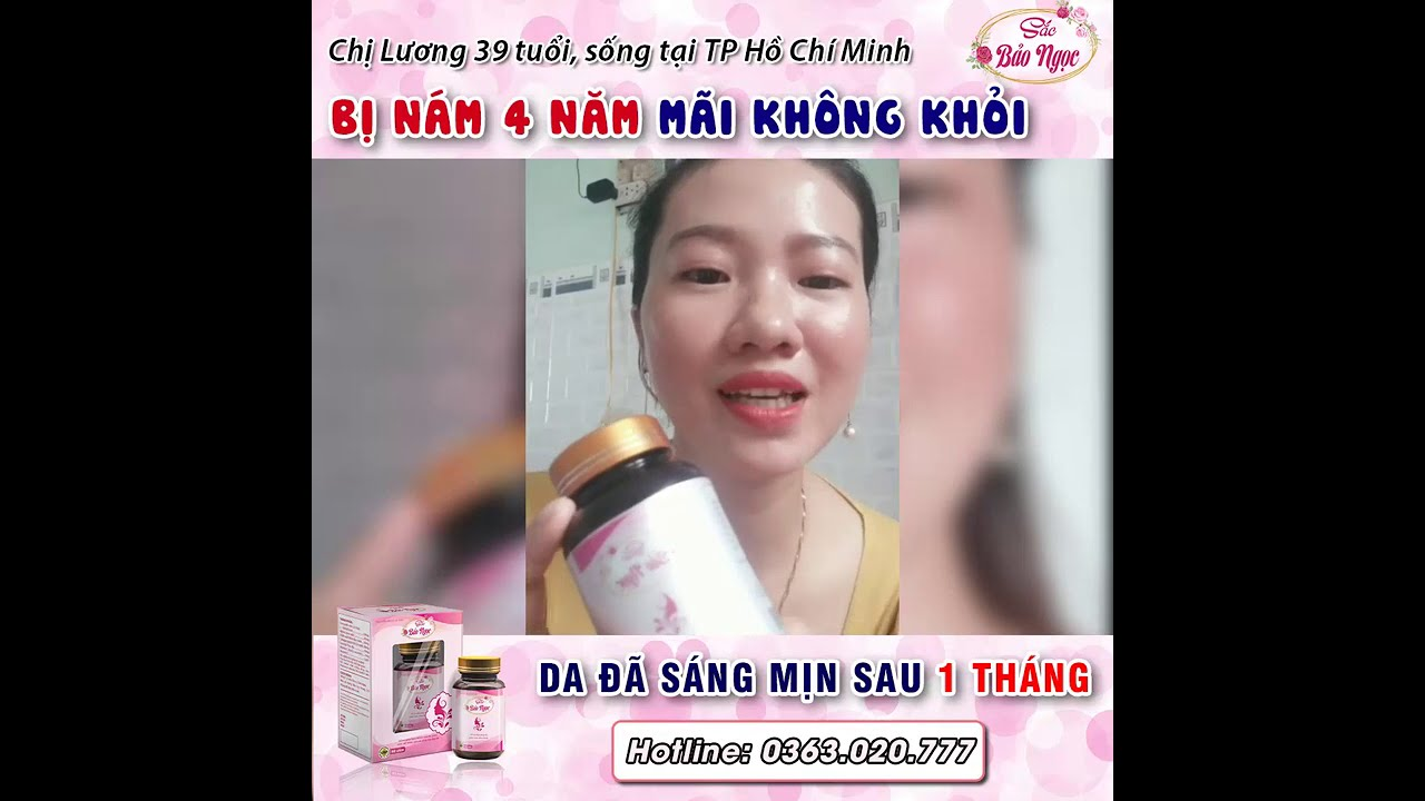 Chị Hồng Lương 39 tuổi nám 4 năm giảm đáng kể sau 1 liệu trình