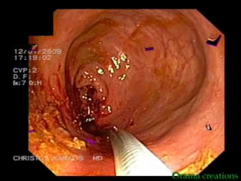 Stent Placement, Colorectal Cancer