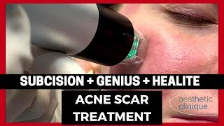 Rolling Acne Scars treated with Cannula Subcision, NEW Genius, and Healite