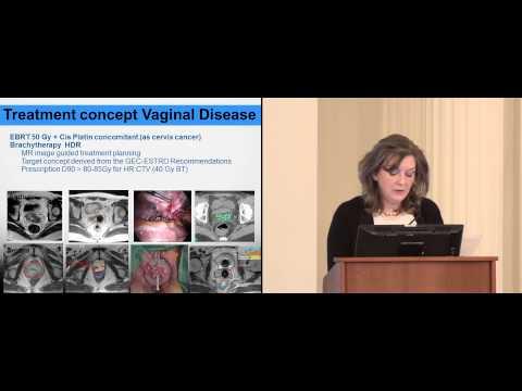 Принципы лучевой терапии в лечении первичного рака влагалища