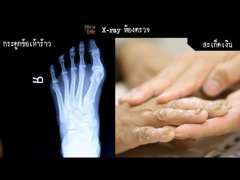 เท้า valgus แบนในอาการเด็ก