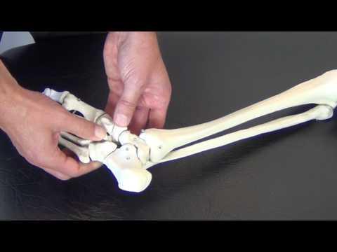 Traumatism la articulația șoldului într-un accident
