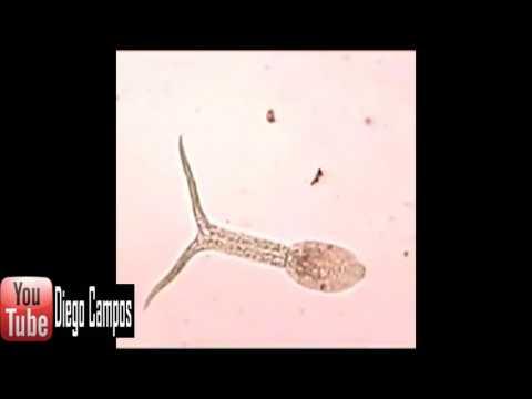 Iyon ng parasites sa tipaklong