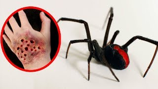THE MOST POISONOUS SPIDERS In The World