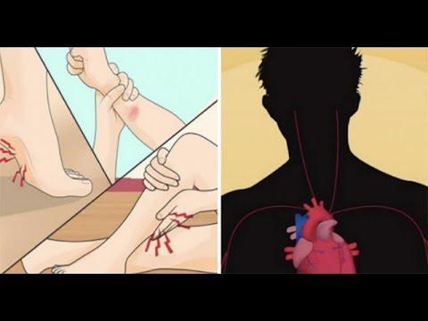 รักษาเส้นเลือดขอดสีน้ำตาลแดง