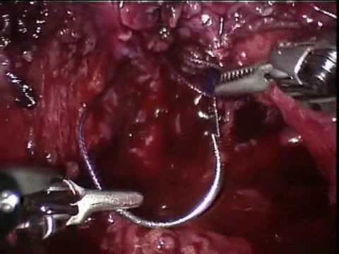 Partial Urinary Bladder Endoscopy With Bladder Diverticulum Removal (Robotically-Assisted And Laparoscopic) (2/3)