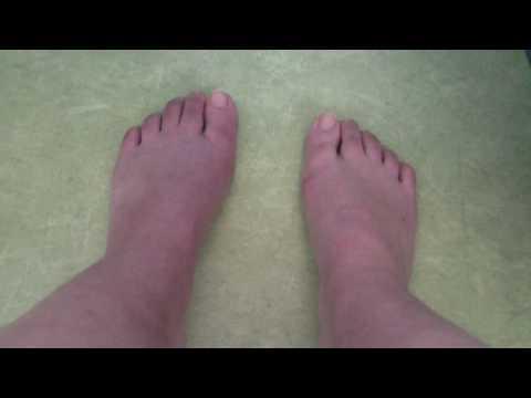 De quoi apparaît la varicosité des veines sur les pieds
