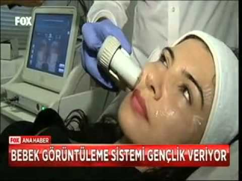 Dr.Emre Çiçek ultrason cihazıyla yüz germe işlemini anlatıyor...