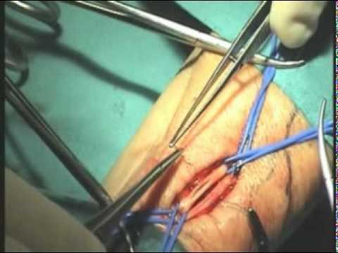 Il varicosity di un utero che trattare