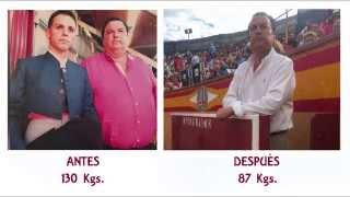 Testimonios Pacientes Obesidad Mórbida: Dionisio - Ignacio Javier Calleja Kempin
