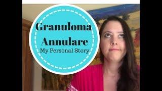 Granuloma Annulare (My Story)