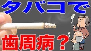 タバコと歯周病の関係
