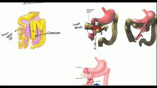 Gut Malrotation, Nonrotation and Volvulus for USMLE