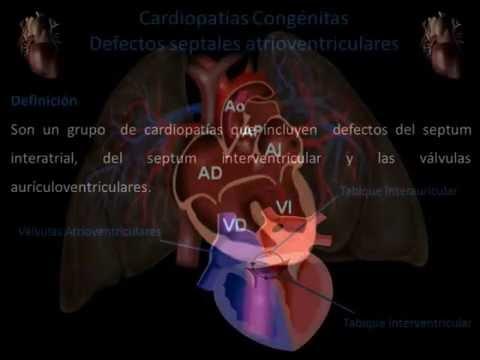 Defectos Almohadillas Endocardicas Demo
