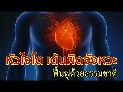 Lioton thrombophlebitis