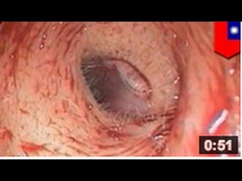 Le traitement le psoriasis à abkhaziya les rappels