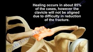 Malunion Of The Clavicle - Everything You Need To Know - Dr. Nabil Ebraheim