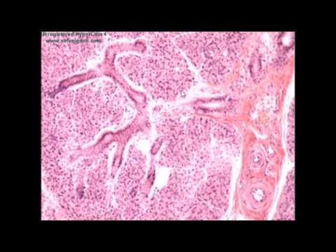 Рак предстательной железы на последних стадиях