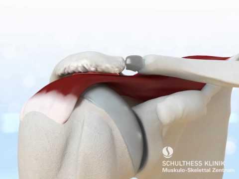 Wunde Abdomen und den unteren Rücken zieht Zystitis