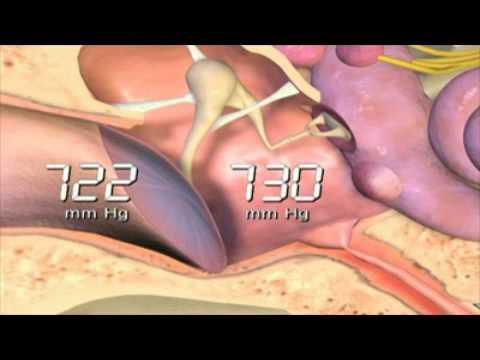 Solution hypertonique rince-bouche