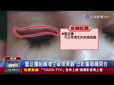 女蟹足腫割雙眼皮眼皮上如現兩條蜈蚣