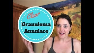 How my Granuloma Annulare Cleared Up
