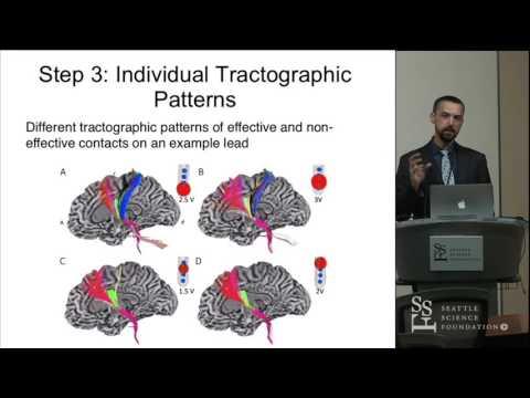 Głęboka Stymulacja Mózgu