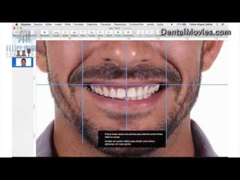 DSD - Digital Smile Design by Felipe Miguel