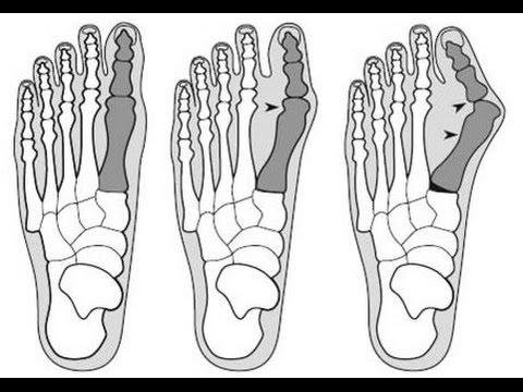Акромиальноключичный сустав
