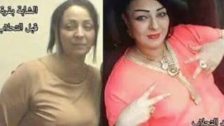 Aouina Bilal Mp3