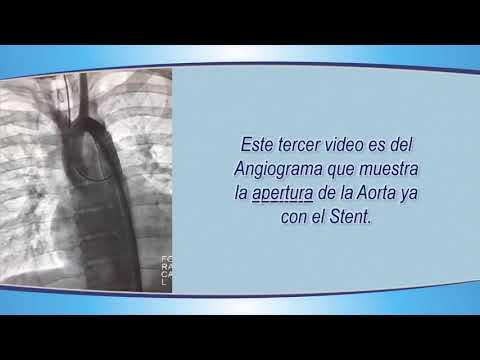 Que para tratar la hipertensión vascular