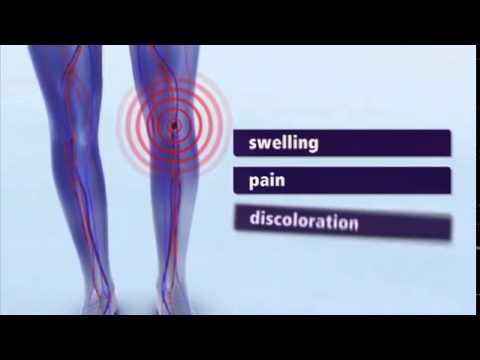 Risposte di gepatrombin a varicosity di gambe