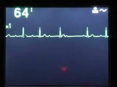 Liječenje povišenog krvnog tlaka adolescenata
