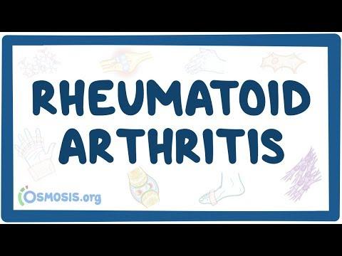 Don ízületi artrózissal